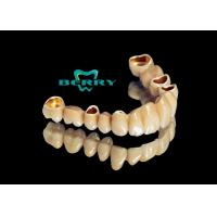Telescope crowns classic and long service life telescopic dentures