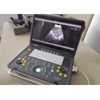 Wholesale Portable Pregnancy Ultrasound Scanner with Abdominal Convex Transvaginal Transducers from china suppliers