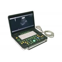 Wholesale 15 inch Notebook Diagnostic Ultrasonic Device Convex Probe Scans Abdomen Liver Kidney from china suppliers