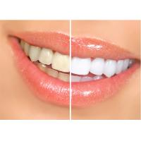 Dental Laser Machine For Teeth Whitening Therapy , Dental Laser Treatment For Soft Tissue